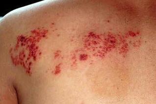 带状疱疹患者的饮食原则